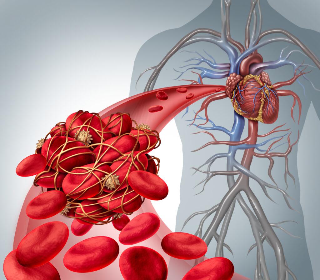 Visste du att en hög sänka innebär en försämrad blodcirkulation?