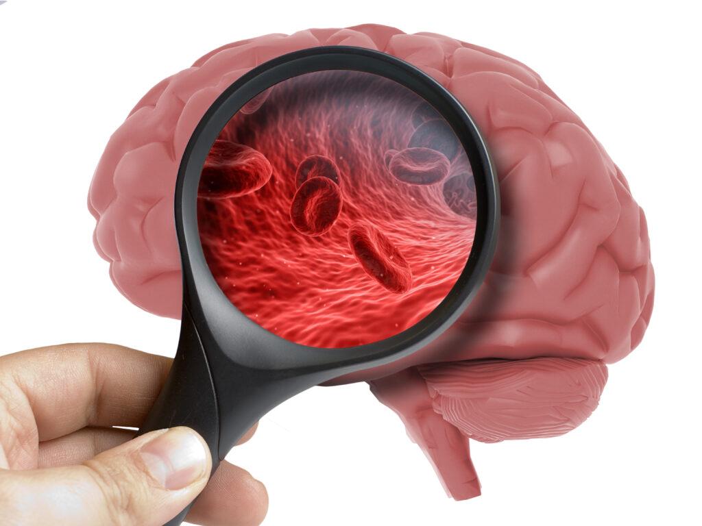 Mikrocirkulationsstörningar upptäckt ligga bakom demens